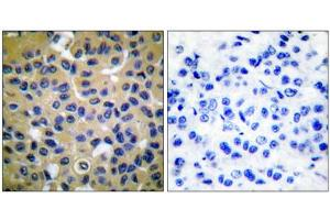 Image no. 3 for anti-Collagen, Type II (COL2) (N-Term) antibody (ABIN1848474)