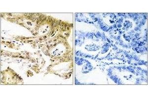 Image no. 2 for anti-Mediator Complex Subunit 23 (MED23) (AA 1-50) antibody (ABIN1534191)