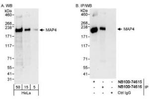 Western Blotting (WB) image for anti-Microtubule-Associated Protein 4 (MAP4) (AA 1102-1152) antibody (ABIN261693)