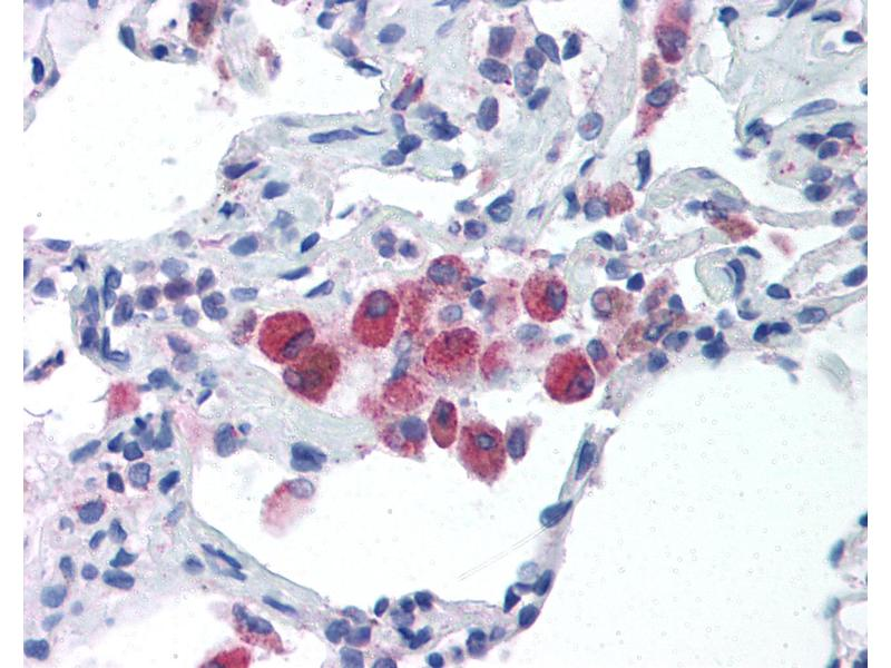 Immunohistochemistry (IHC) image for anti-Toll-Like Receptor 5 (TLR5) (C-Term) antibody (ABIN213999)