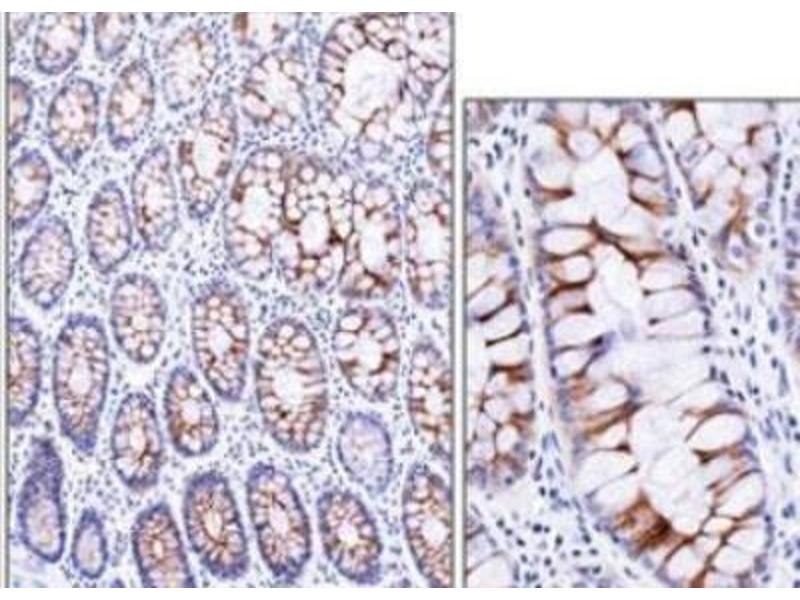 Immunohistochemistry (Paraffin-embedded Sections) (IHC (p)) image for anti-Extracellular Matrix Protein 1 (ECM1) antibody (ABIN4306907)