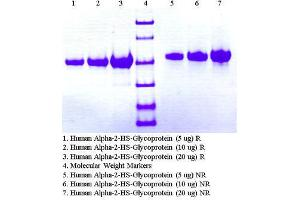 Image no. 1 for alpha-2-HS-Glycoprotein (AHSG) protein (ABIN491568)