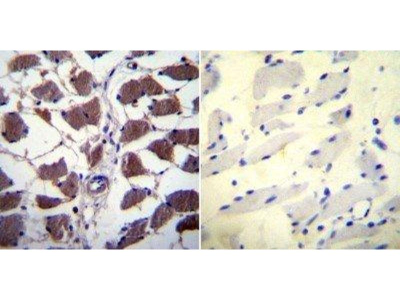 Immunohistochemistry (Paraffin-embedded Sections) (IHC (p)) image for anti-Nuclear Factor of Activated T-Cells, Cytoplasmic, Calcineurin-Dependent 1 (NFATC1) (AA 1-654) antibody (ABIN152773)