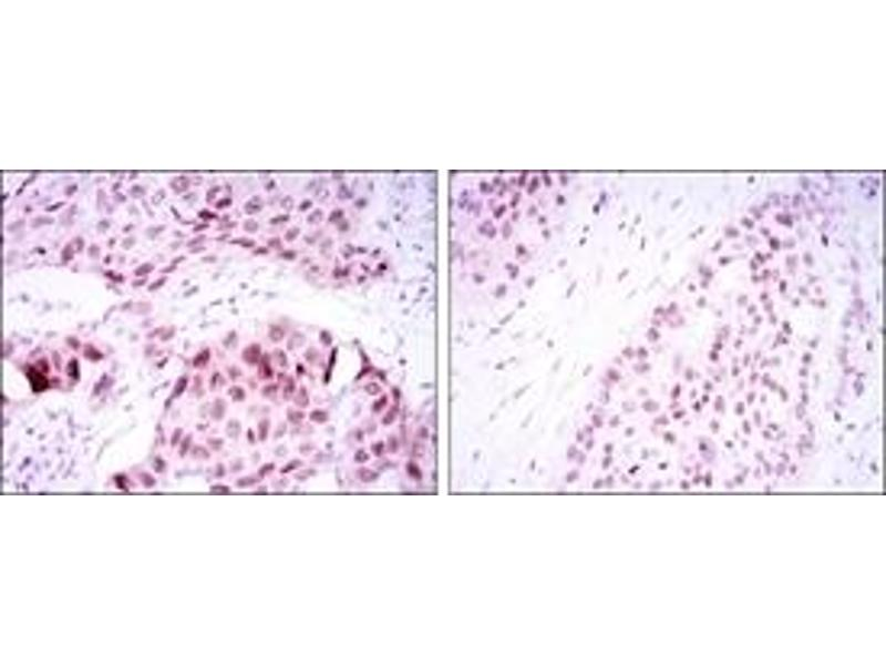 Immunohistochemistry (IHC) image for anti-SRY (Sex Determining Region Y)-Box 2 (SOX2) antibody (ABIN1109110)