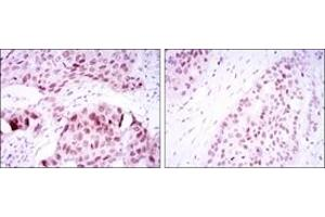 Immunohistochemistry (IHC) image for anti-SOX2 antibody (SRY (Sex Determining Region Y)-Box 2) (ABIN1109110)