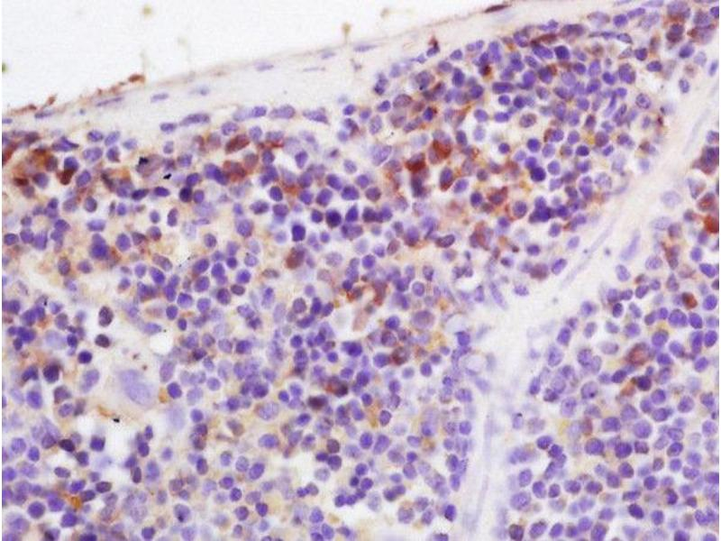 Immunohistochemistry (Paraffin-embedded Sections) (IHC (p)) image for anti-Complement Factor B (CFB) antibody (ABIN1386781)
