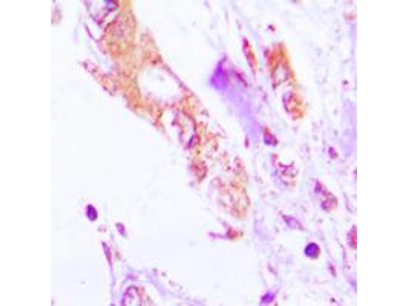 Immunohistochemistry (IHC) image for anti-Interleukin 1, beta (IL1B) (Center) antibody (ABIN2706371)