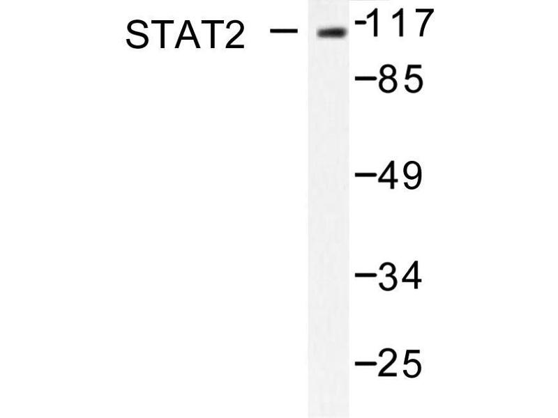 image for anti-STAT2 antibody (Signal Transducer and Activator of Transcription 2, 113kDa) (ABIN271825)