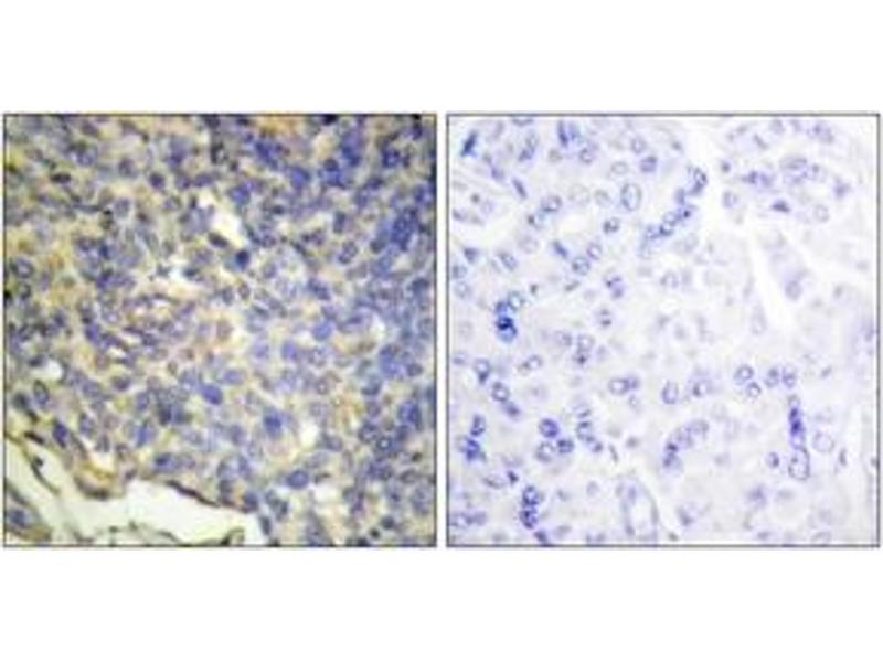 Immunohistochemistry (IHC) image for anti-DNA Fragmentation Factor, 45kDa, alpha Polypeptide (DFFA) (AA 151-200) antibody (ABIN1534436)