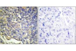 Immunohistochemistry (IHC) image for anti-DFFA antibody (DNA Fragmentation Factor, 45kDa, alpha Polypeptide) (ABIN1534436)