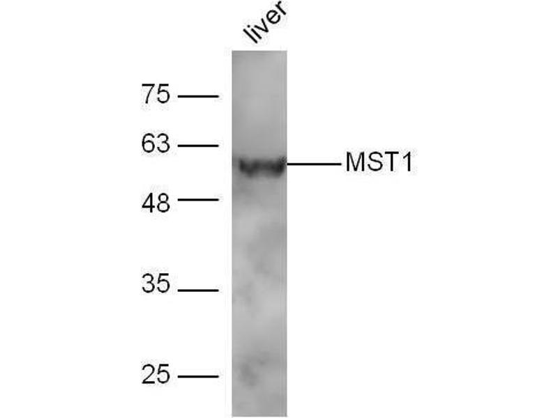 Western Blotting (WB) image for anti-Macrophage Stimulating 1 (Hepatocyte Growth Factor-Like) (MST1) (AA 400-450) antibody (ABIN747308)