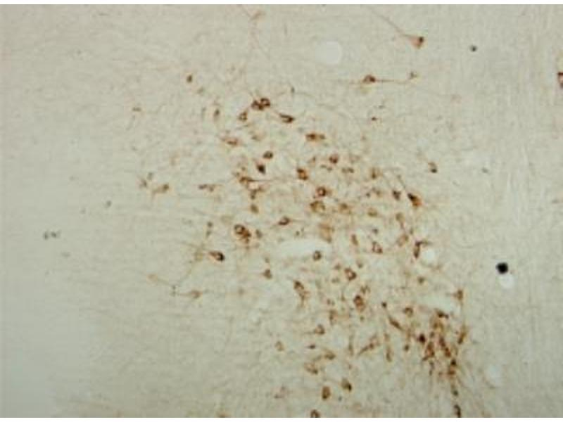 Immunohistochemistry (Paraffin-embedded Sections) (IHC (p)) image for anti-Choline O-Acetyltransferase (CHAT) antibody (ABIN447461)