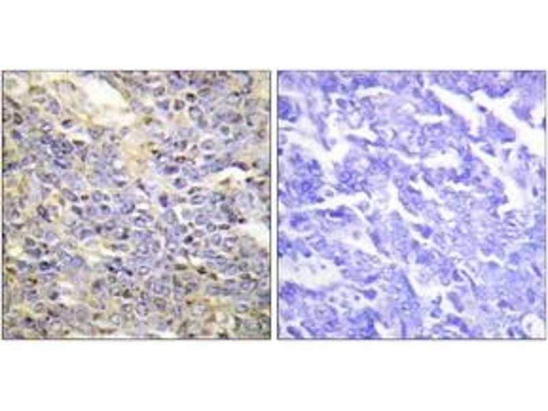 Immunohistochemistry (IHC) image for anti-Caspase 9, Apoptosis-Related Cysteine Peptidase (CASP9) (AA 91-140) antibody (ABIN1532234)