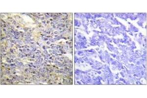 Immunohistochemistry (IHC) image for anti-Caspase 9 antibody (Caspase 9, Apoptosis-Related Cysteine Peptidase) (ABIN1532234)