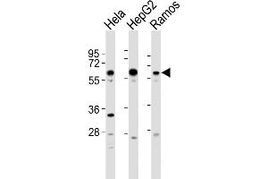Image no. 2 for anti-G Protein-Coupled Receptor Kinase 5 (GRK5) (AA 559-590), (C-Term) antibody (ABIN5531235)