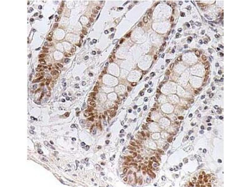 Immunohistochemistry (IHC) image for anti-Checkpoint Kinase 2 (CHEK2) antibody (ABIN487312)