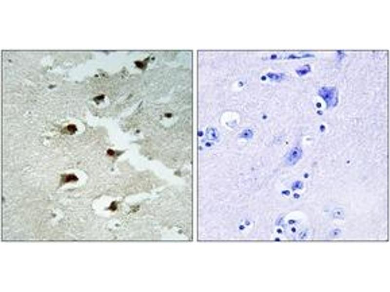 Immunohistochemistry (IHC) image for anti-Cell Division Cycle Associated 4 (CDCA4) (AA 121-170) antibody (ABIN1534323)