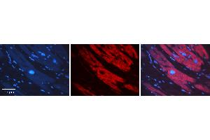 Image no. 1 for anti-Sorting Nexin 1 (SNX1) (C-Term) antibody (ABIN5515146)
