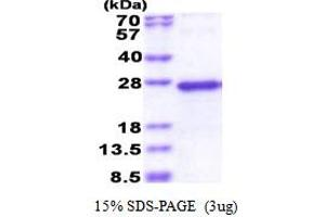 Image no. 1 for NADH Dehydrogenase (Ubiquinone) Fe-S Protein 5, 15kDa (NADH-Coenzyme Q Reductase) (NDUFS5) (AA 1-106) protein (His tag) (ABIN5853540)