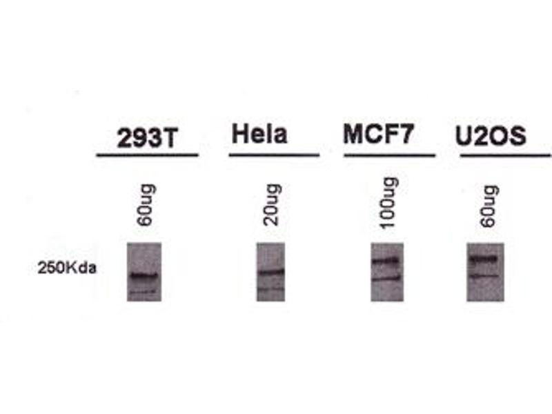 Western Blotting (WB) image for anti-BRCA1 antibody (Breast Cancer 1) (AA 1314-1864) (ABIN253016)