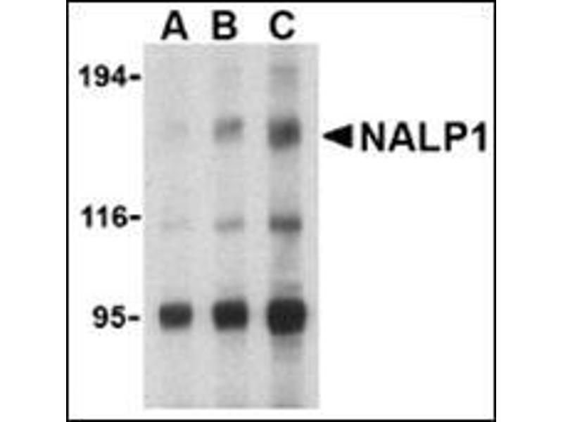 Western Blotting (WB) image for anti-NLRP1 antibody (NLR Family, Pyrin Domain Containing 1) (C-Term) (ABIN500310)