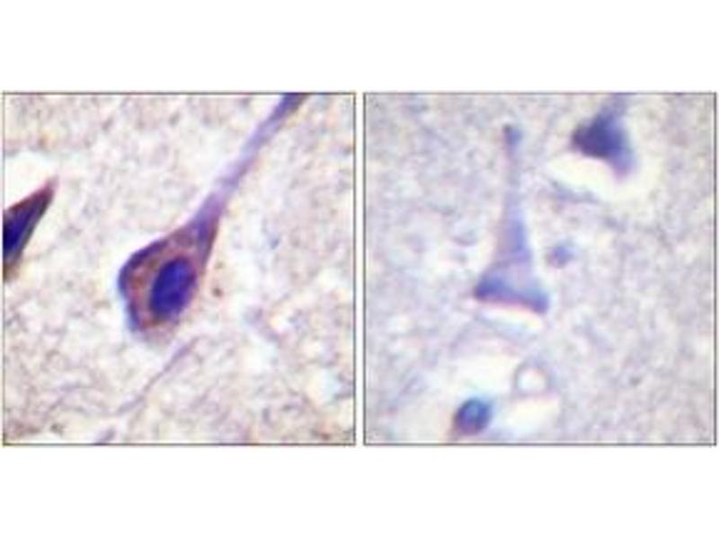 Immunohistochemistry (IHC) image for anti-BID antibody (BH3 Interacting Domain Death Agonist) (ABIN1532322)