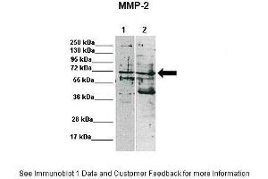 Image no. 3 for anti-Matrix Metalloproteinase 2 (MMP2) (C-Term) antibody (ABIN2792308)