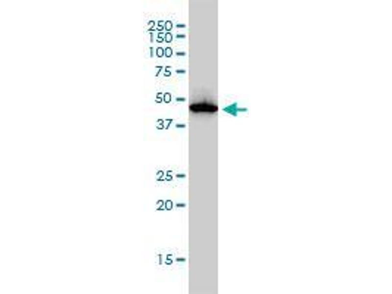 Western Blotting (WB) image for anti-ADA antibody (Adenosine Deaminase) (AA 1-364) (ABIN396441)