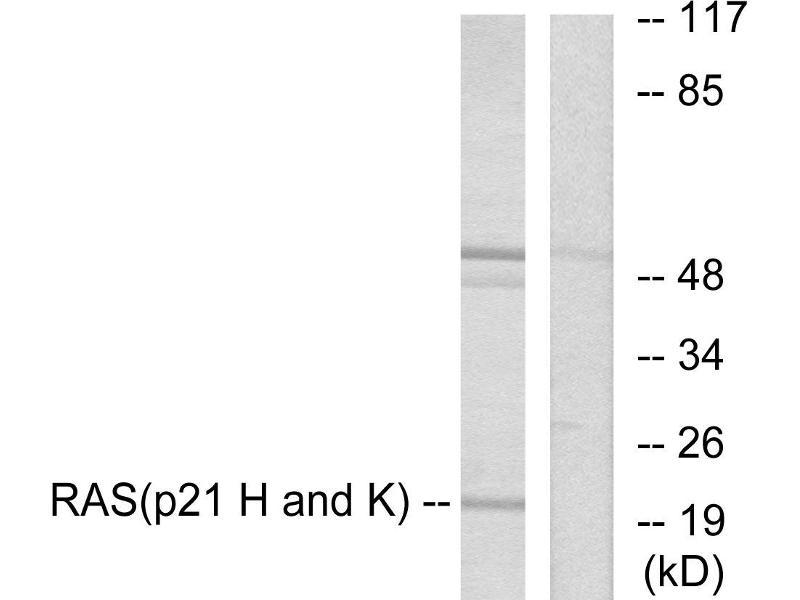 Western Blotting (WB) image for anti-GTPase NRas antibody (NRAS) (ABIN2449263)