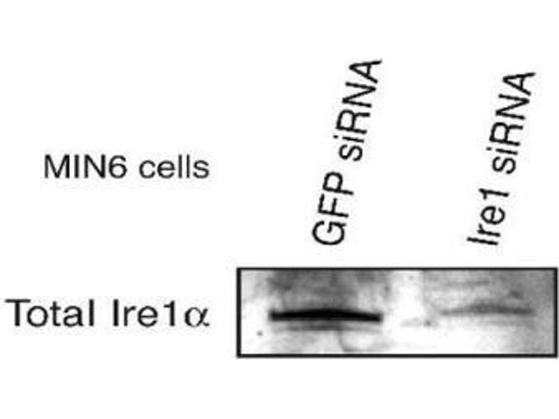 Western Blotting (WB) image for anti-ERN1 antibody (Endoplasmic Reticulum (ER) To Nucleus Signalling 1) (AA 700-800) (ABIN250711)