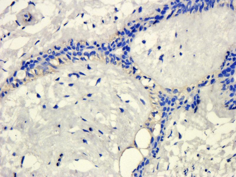 Immunohistochemistry (Paraffin-embedded Sections) (IHC (p)) image for anti-Kallikrein B, Plasma (Fletcher Factor) 1 (KLKB1) antibody (ABIN2506647)