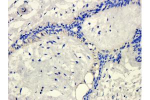 Immunohistochemistry (Paraffin-embedded Sections) (IHC (p)) image for anti-KLKB1 antibody (Kallikrein B, Plasma (Fletcher Factor) 1) (ABIN2506647)