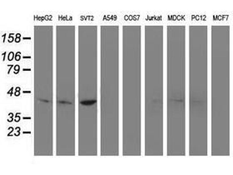 image for anti-NudE Nuclear Distribution E Homolog (A. Nidulans)-Like 1 (NDEL1) antibody (ABIN1499853)