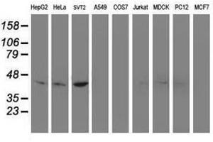 image for anti-NudE Nuclear Distribution E Homolog (A. Nidulans)-Like 1 (NDEL1) antibody (ABIN1499853)