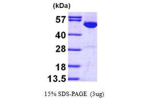 Image no. 1 for Inosine 5'-Phosphate Dehydrogenase 1 (IMPDH1) (AA 1-514) protein (His tag) (ABIN667787)