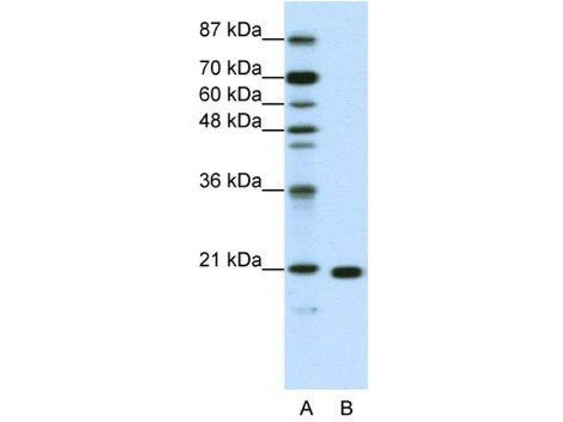 Western Blotting (WB) image for anti-Ribosomal Protein L9 (RPL9) (C-Term) antibody (ABIN183898)