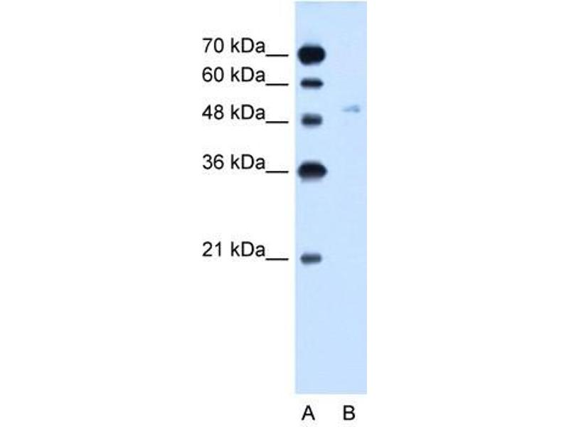 Image no. 2 for anti-Solute Carrier Family 2 (Facilitated Glucose Transporter), Member 6 (SLC2A6) antibody (ABIN630369)