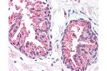 Immunohistochemistry (IHC) image for anti-Malignant T Cell Amplified Sequence 1 (MCTS1) (AA 3-14) antibody (ABIN214274)