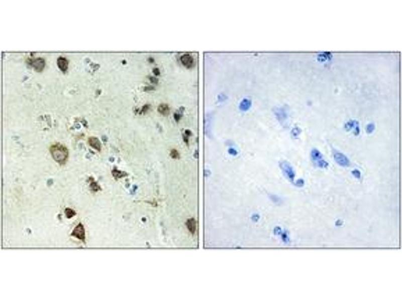 Immunohistochemistry (IHC) image for anti-Ribosomal Protein S6 Kinase, 90kDa, Polypeptide 6 (RPS6KA6) (AA 661-710) antibody (ABIN1534185)