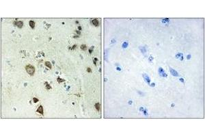 Immunohistochemistry (IHC) image for anti-RPS6KA6 antibody (Ribosomal Protein S6 Kinase, 90kDa, Polypeptide 6) (ABIN1534185)