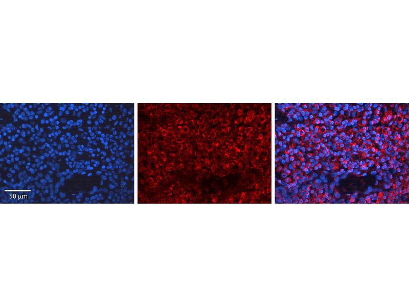 Immunohistochemistry (IHC) image for anti-Breast Cancer 1 (BRCA1) (N-Term) antibody (ABIN2779333)