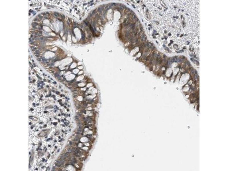 Immunohistochemistry (IHC) image for anti-Phosphatidylinositol-4-Phosphate 5-Kinase, Type I, gamma (PIP5K1C) antibody (ABIN4345710)