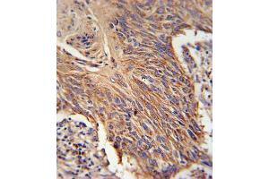 Image no. 2 for anti-Retinol Dehydrogenase 10 (All-Trans) (RDH10) antibody (ABIN3002122)