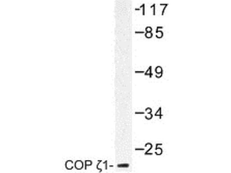 Western Blotting (WB) image for anti-Coatomer Protein Complex, Subunit zeta 1 (COPZ1) (N-Term) antibody (ABIN314531)