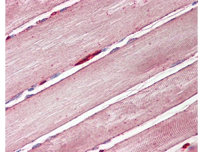 Immunohistochemistry (IHC) image for anti-Solute Carrier Family 2 (Facilitated Glucose Transporter), Member 4 (SLC2A4) (AA 498-509) antibody (ABIN1492810)