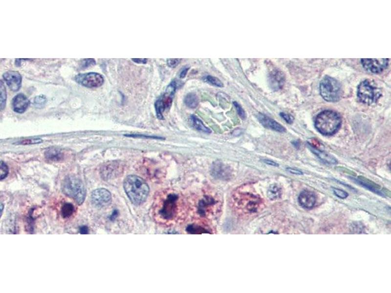 Immunohistochemistry (IHC) image for anti-STAT5B antibody (Signal Transducer and Activator of Transcription 5B) (N-Term) (ABIN2780884)