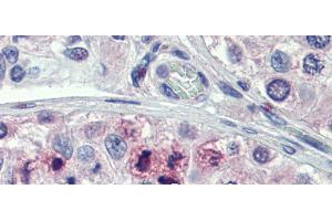 Image no. 3 for anti-Signal Transducer and Activator of Transcription 5B (STAT5B) (N-Term) antibody (ABIN2780884)