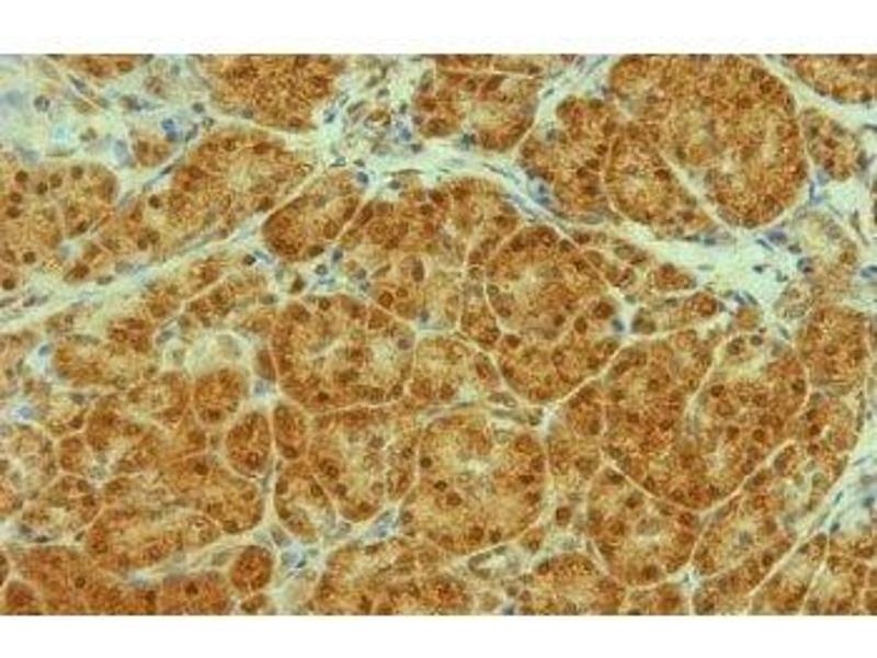 image for anti-Transportin 1 antibody (TNPO1) (ABIN108619)
