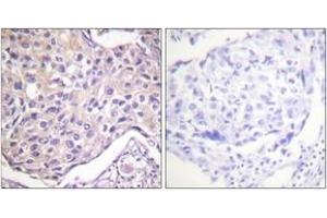 Immunohistochemistry (IHC) image for anti-Adrenergic, Beta, Receptor Kinase 1 (ADRBK1) (AA 14-63), (pSer29) antibody (ABIN1531323)