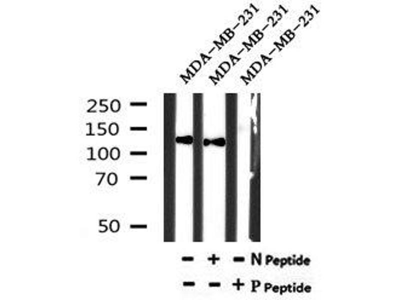 Image no. 1 for anti-Receptor tyrosine-protein kinase erbB-2 (ErbB2/Her2) (pTyr1005) antibody (ABIN6269773)
